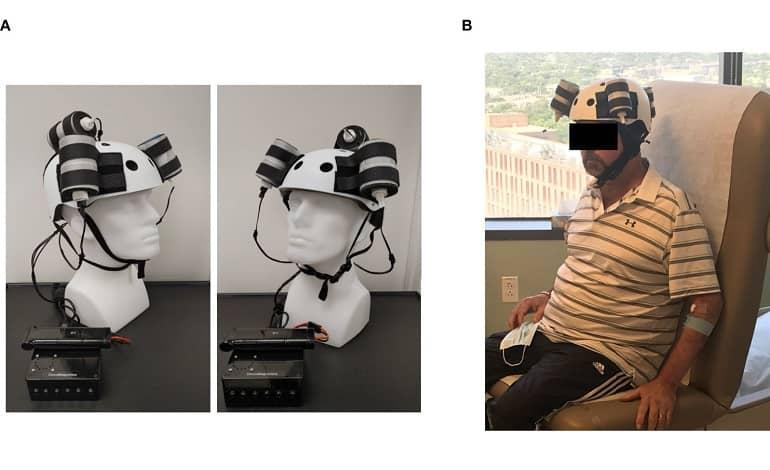 magnetic helmet tumor - آزمایش اولین کلاه مغناطیسی برای کوچک کردن تومور مغزی کشنده